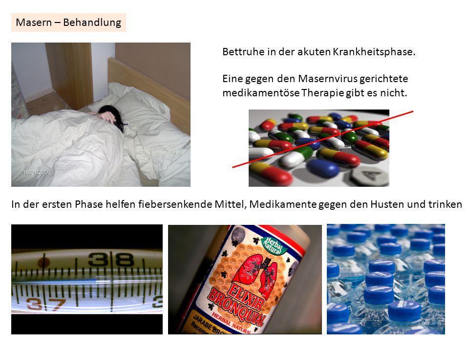 Masern – Behandlung Bettruhe in der akuten Krankheitsphase. Eine gegen den Masernvirus gerichtete.