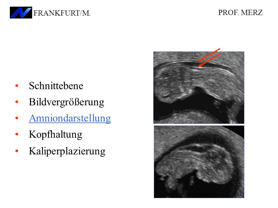 Schnittebene Bildvergrößerung Amniondarstellung Kopfhaltung