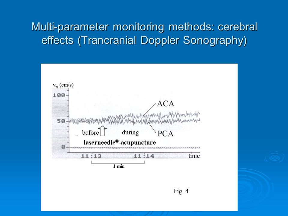 Multi-parameter monitoring methods: cerebral effects (Trancranial Doppler Sonography)