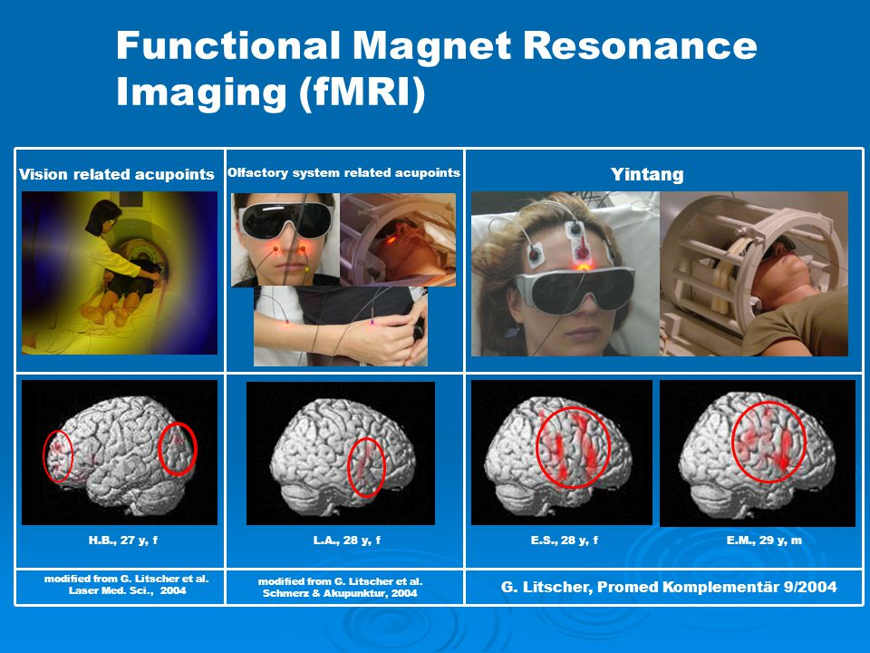 Functional Magnet Resonance Imaging (fMRI)