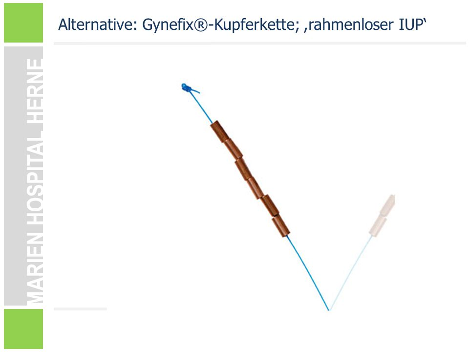 Alternative: Gynefix®-Kupferkette; ,rahmenloser IUP'
