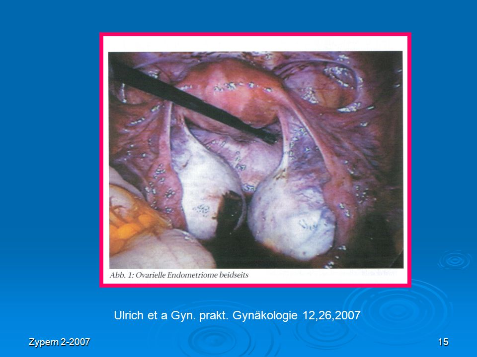 Ulrich et a Gyn. prakt. Gynäkologie 12,26,2007