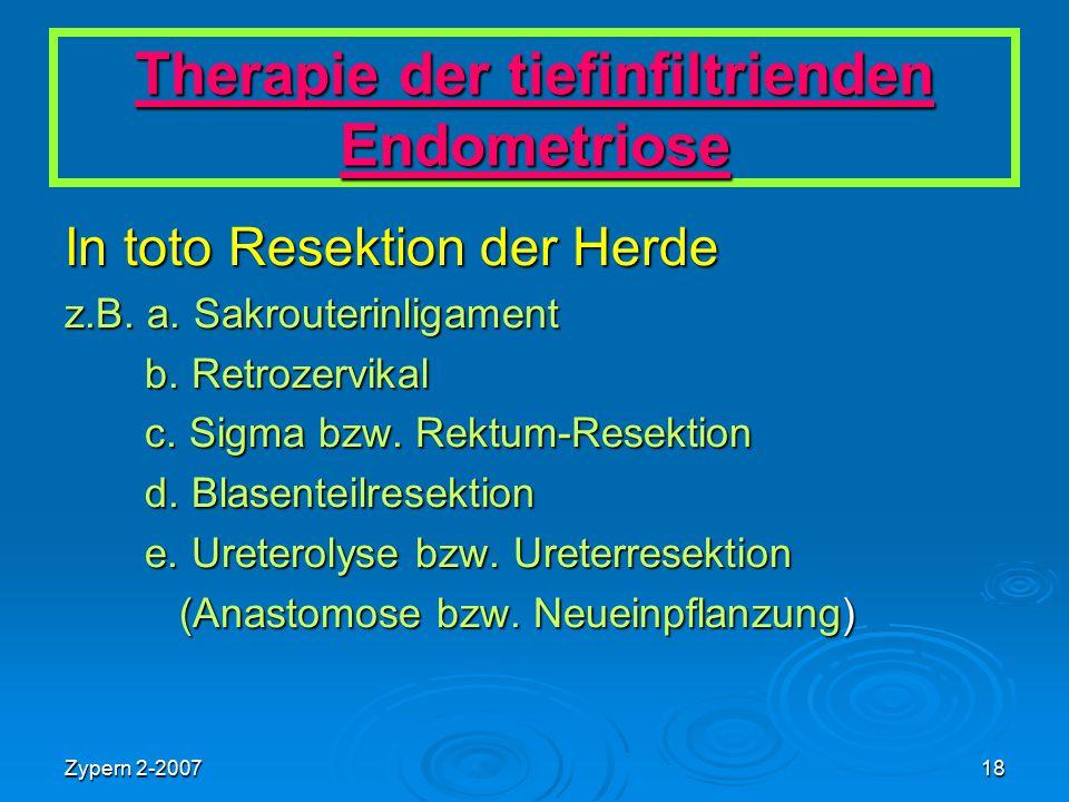 Therapie der tiefinfiltrienden Endometriose