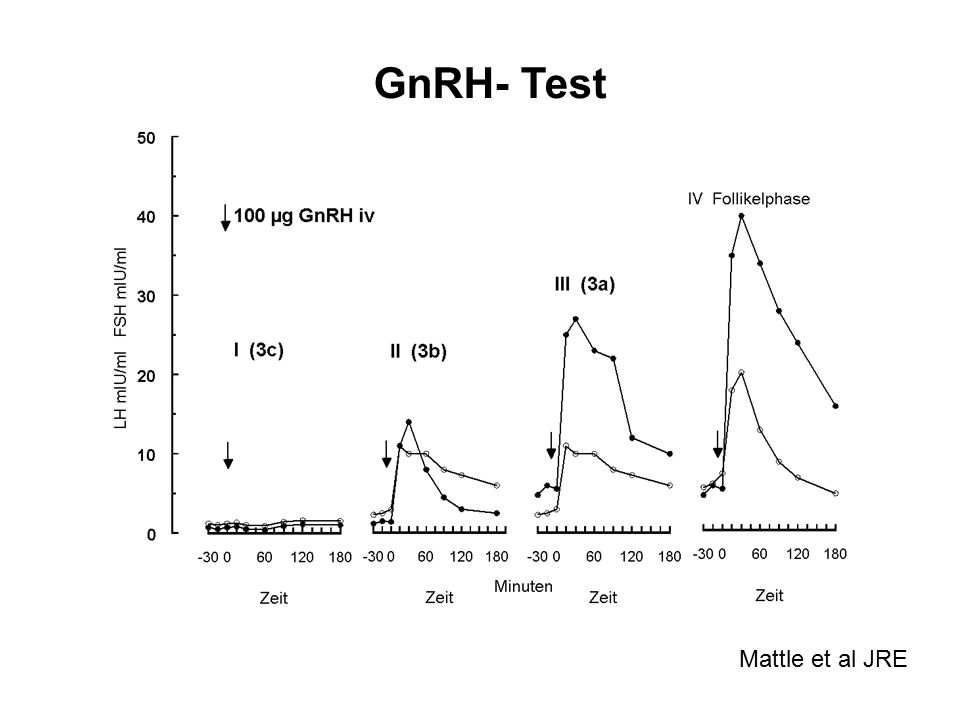 GnRH- Test Mattle et al JRE
