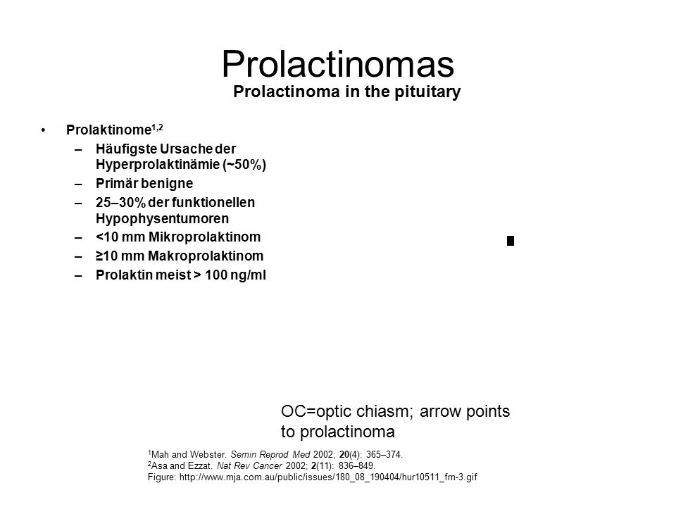 Prolactinomas Prolactinoma in the pituitary