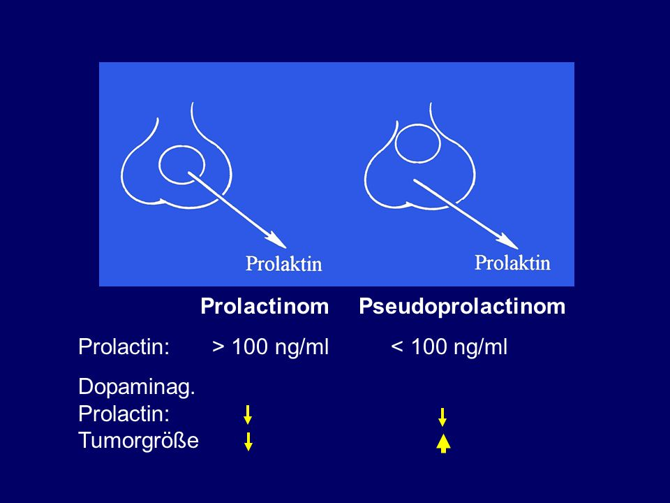 Prolactinom Pseudoprolactinom