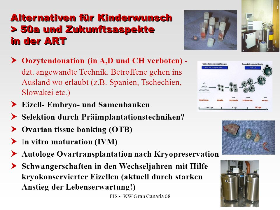 Alternativen für Kinderwunsch > 50a und Zukunftsaspekte in der ART
