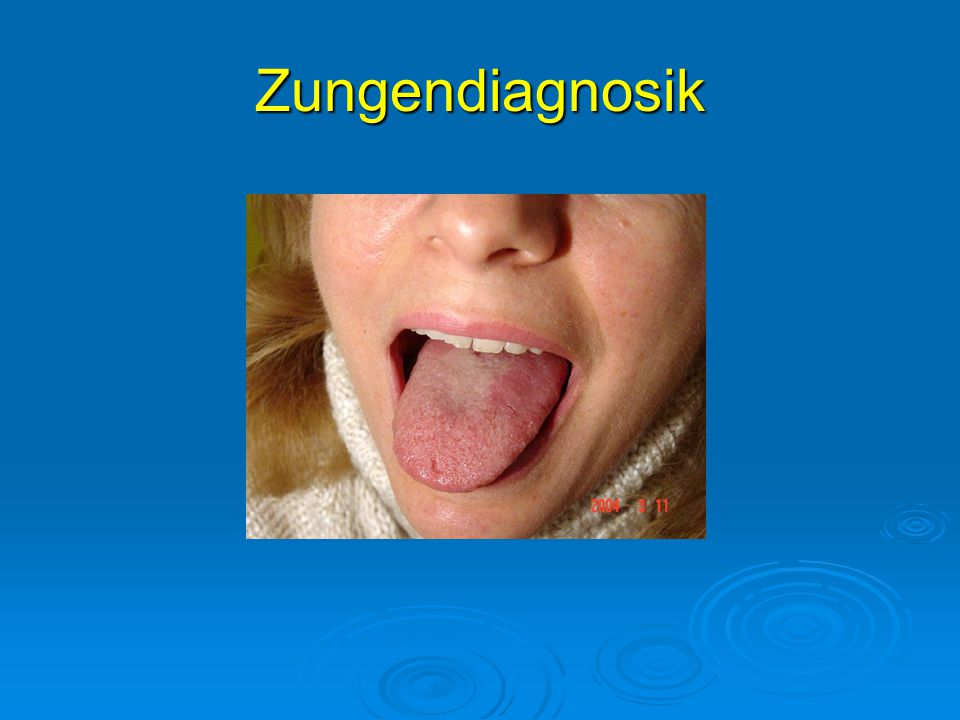 Zungendiagnosik