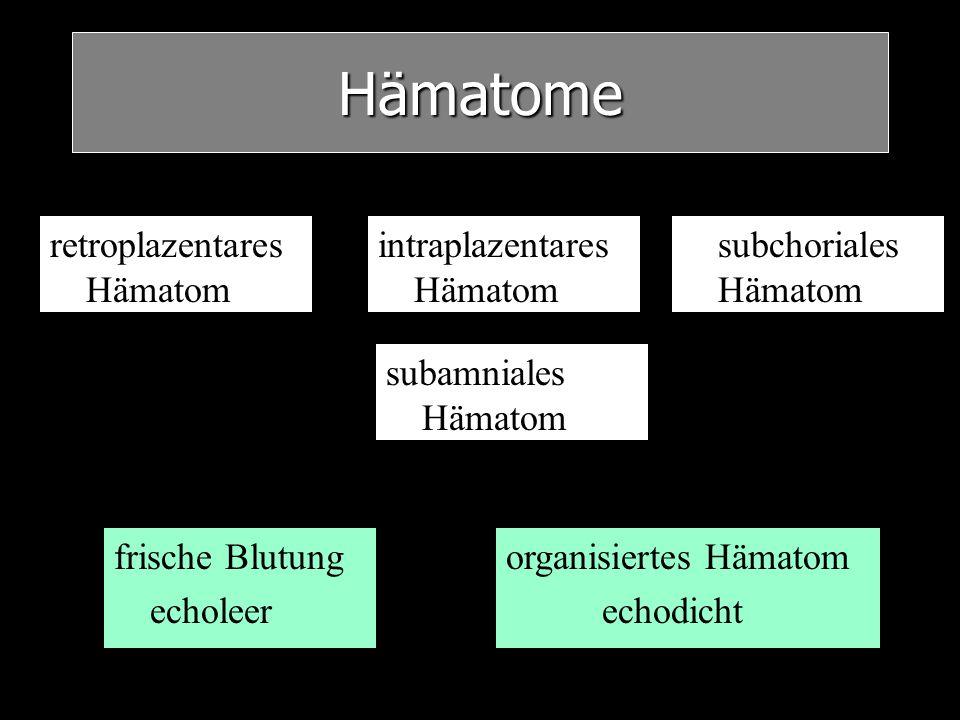 Hämatome retroplazentares Hämatom intraplazentares Hämatom