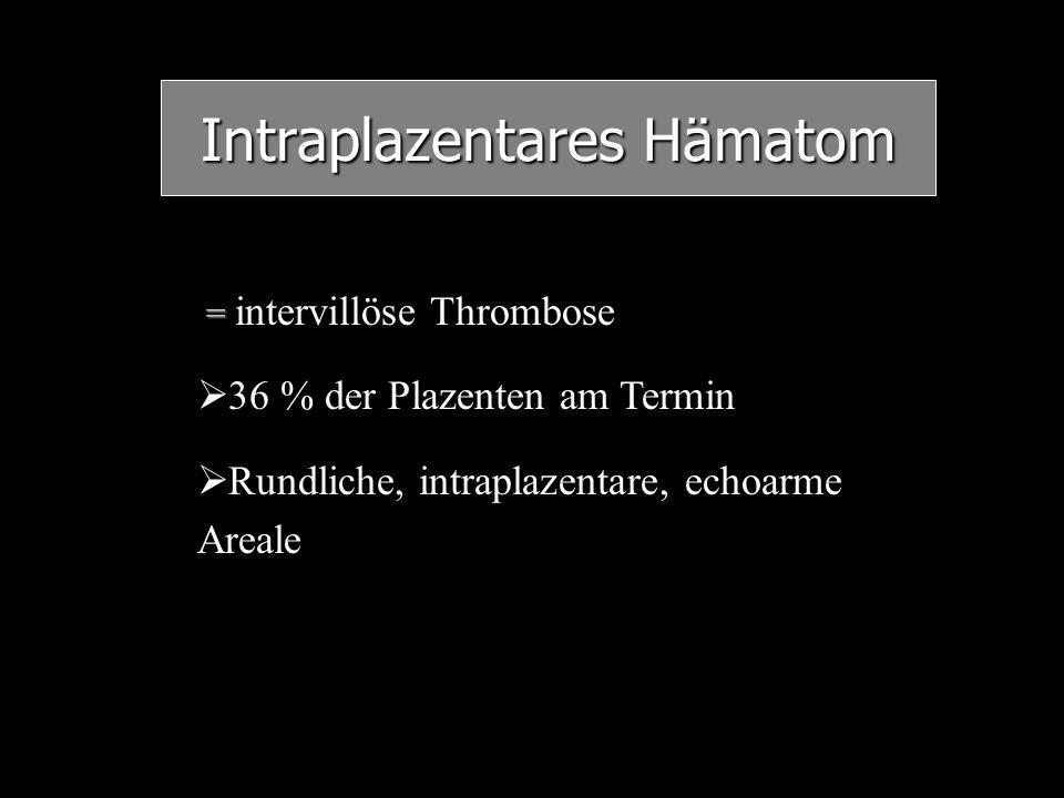 Intraplazentares Hämatom