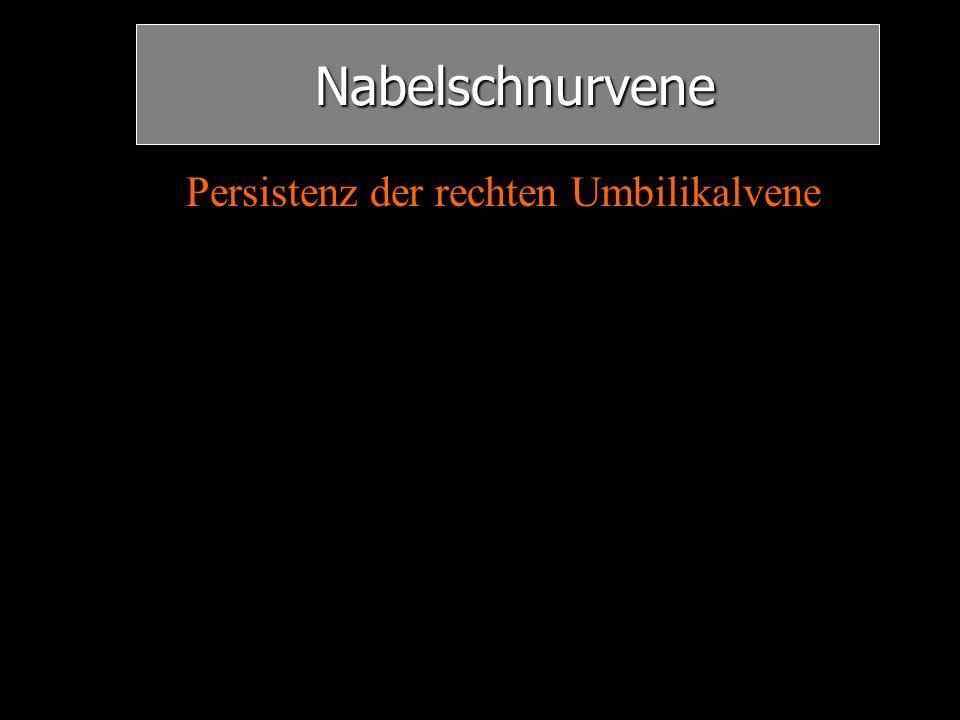 Nabelschnurvene Persistenz der rechten Umbilikalvene