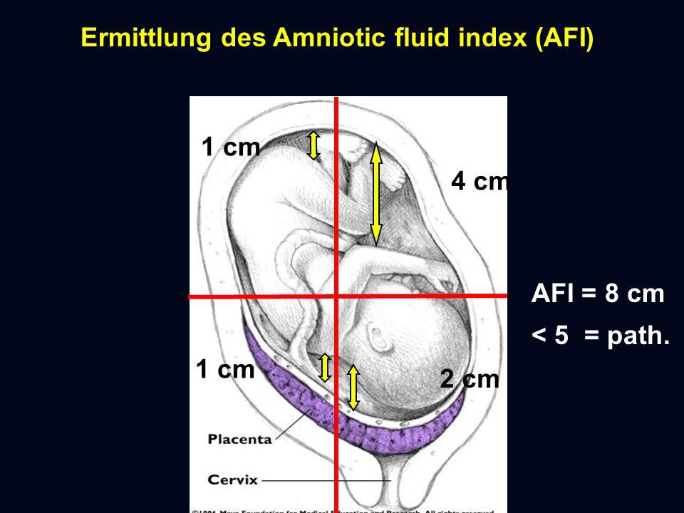 Ermittlung des Amniotic fluid index (AFI)