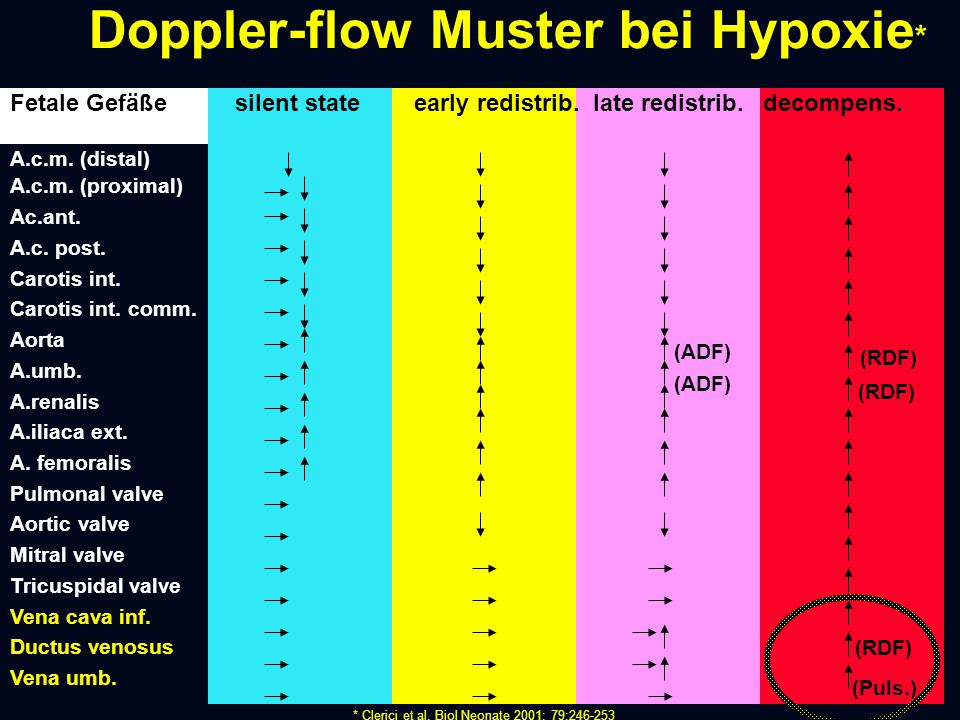 Doppler-flow Muster bei Hypoxie*