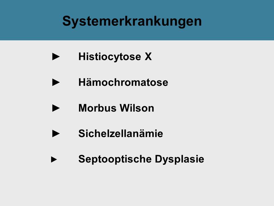 Systemerkrankungen ► Histiocytose X ► Hämochromatose ► Morbus Wilson