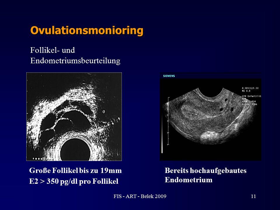 Ovulationsmonioring Follikel- und Endometriumsbeurteilung