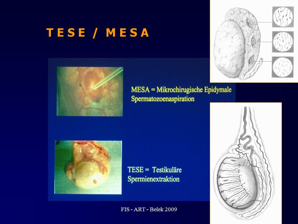 T E S E / M E S A FIS - ART - Belek 2009