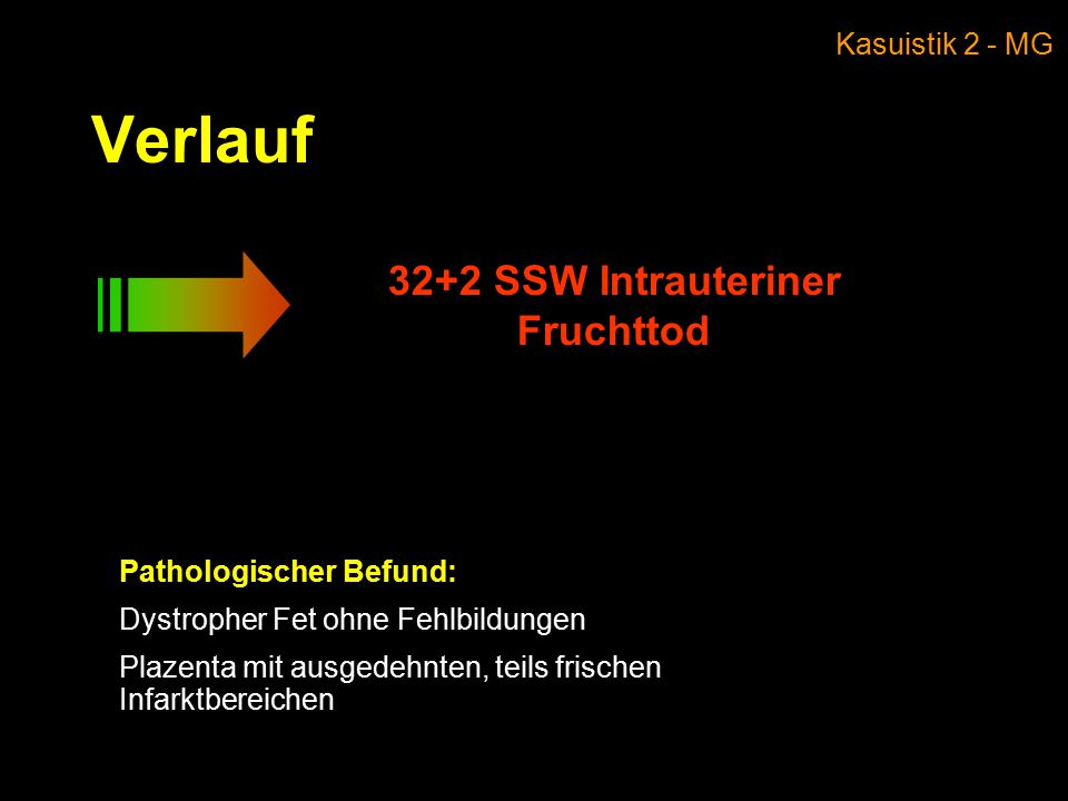 32+2 SSW Intrauteriner Fruchttod