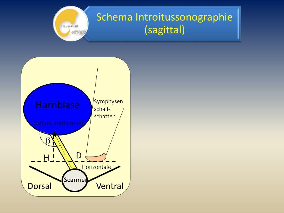 Schema Introitussonographie (sagittal)