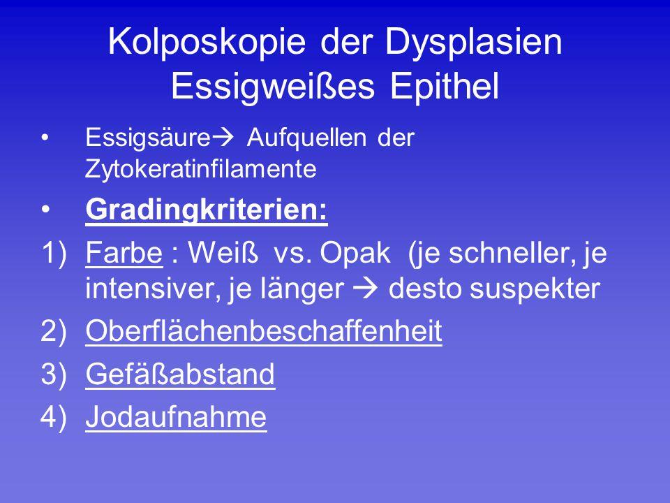 Kolposkopie der Dysplasien Essigweißes Epithel