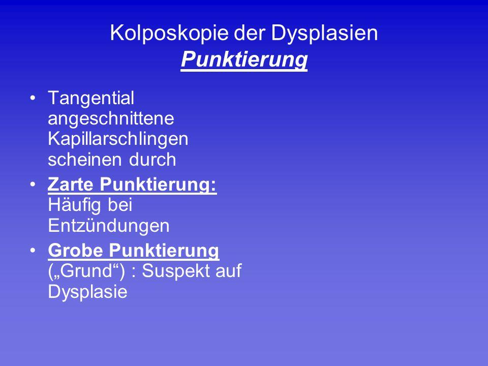 Kolposkopie der Dysplasien Punktierung