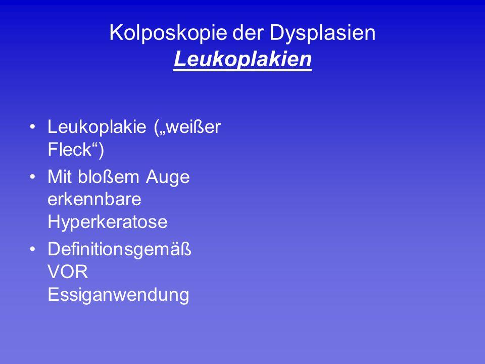 Kolposkopie der Dysplasien Leukoplakien