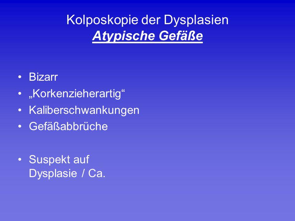 Kolposkopie der Dysplasien Atypische Gefäße