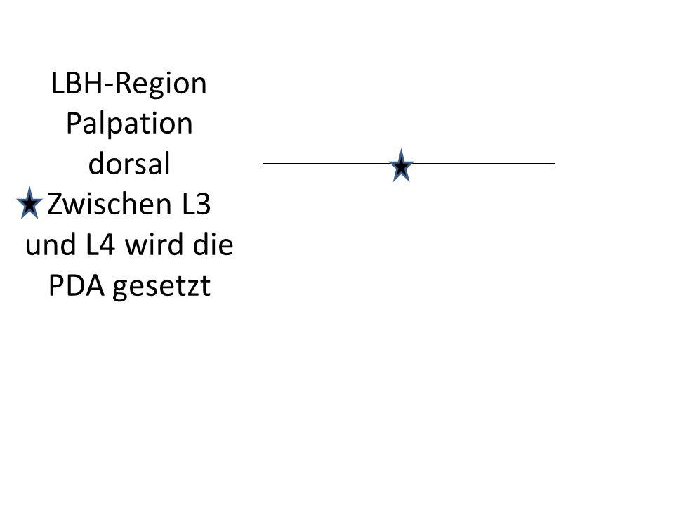 LBH-Region Palpation dorsal Zwischen L3 und L4 wird die PDA gesetzt