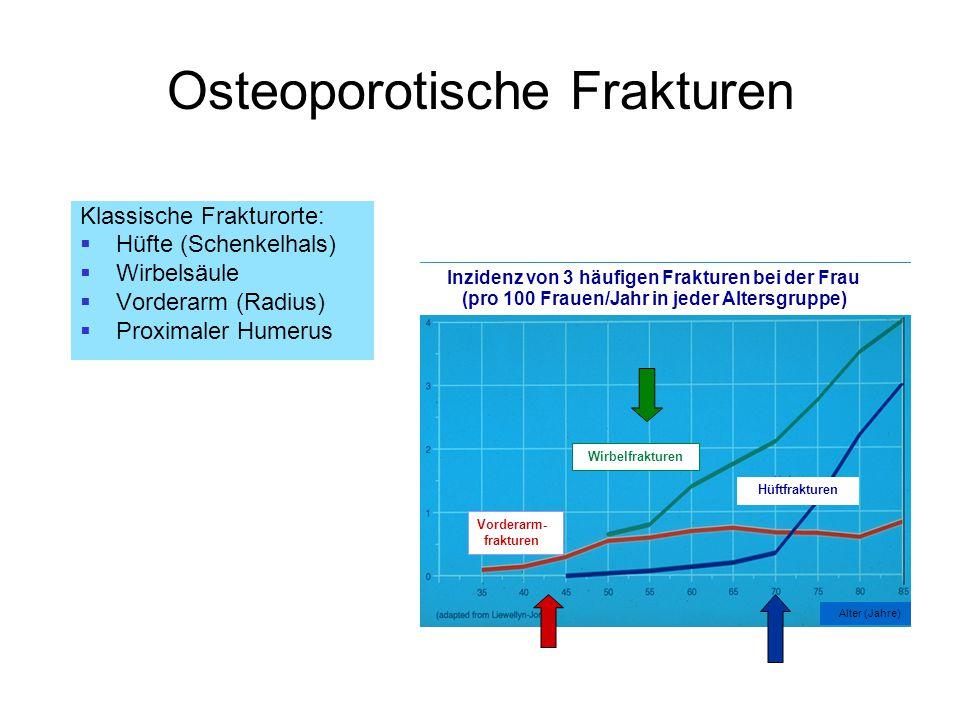 Osteoporotische Frakturen