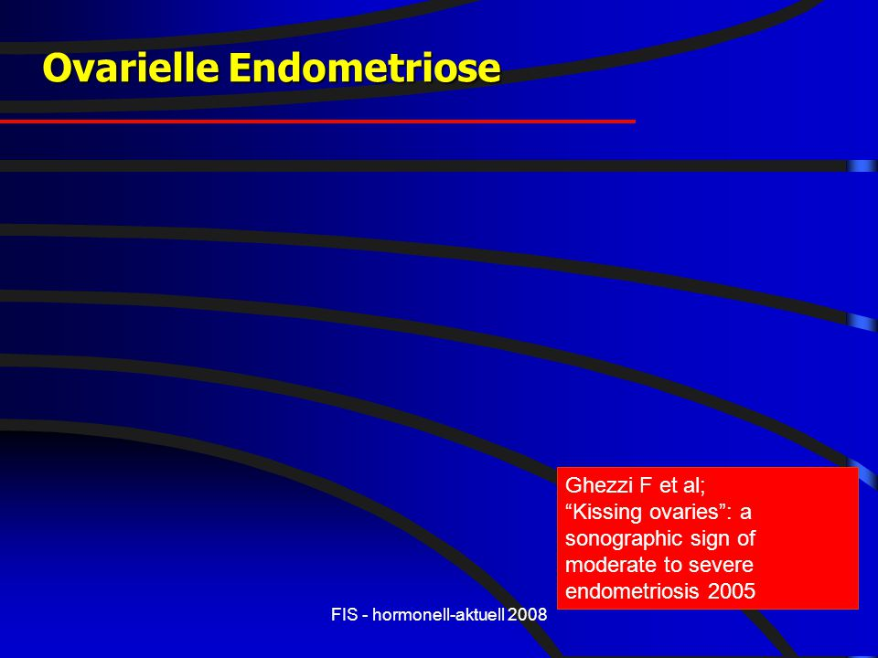 Ovarielle Endometriose