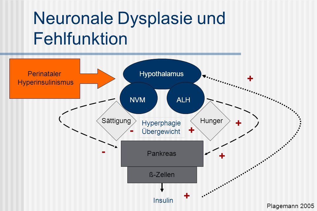 Neuronale Dysplasie und Fehlfunktion