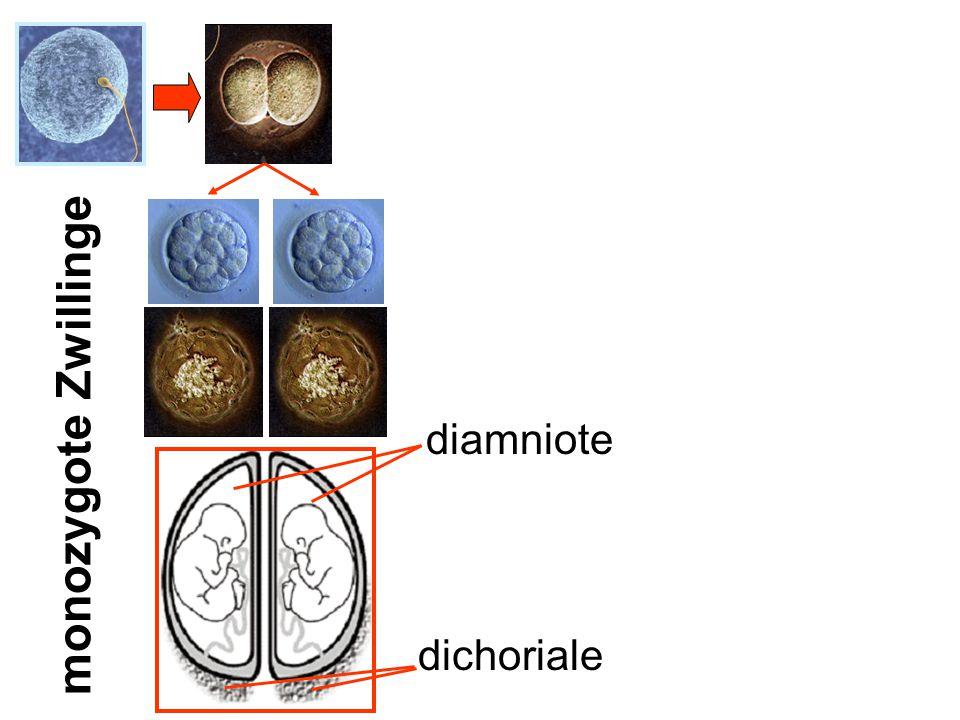 monozygote Zwillinge diamniote dichoriale