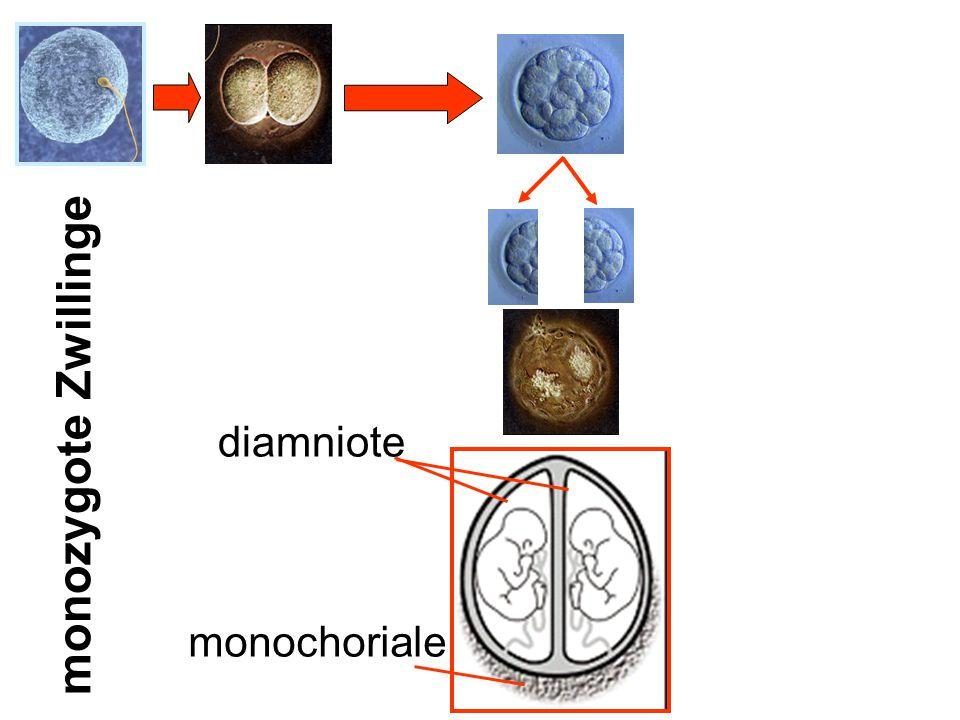 monozygote Zwillinge diamniote monochoriale