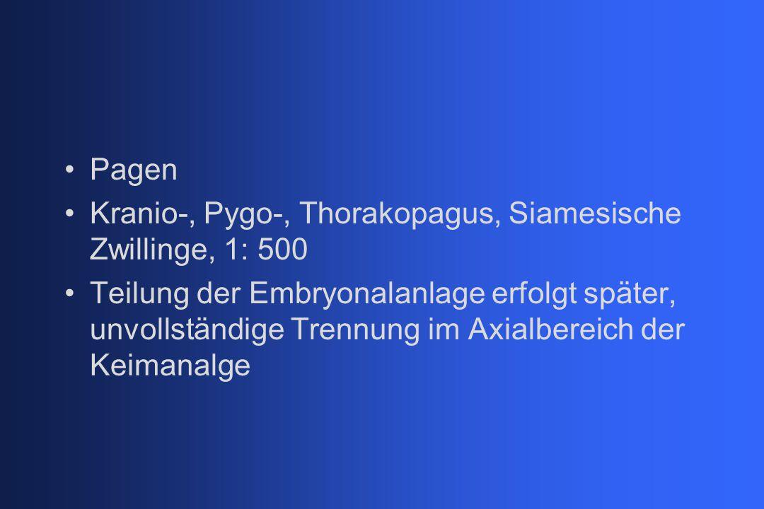 Pagen Kranio-, Pygo-, Thorakopagus, Siamesische Zwillinge, 1: 500.