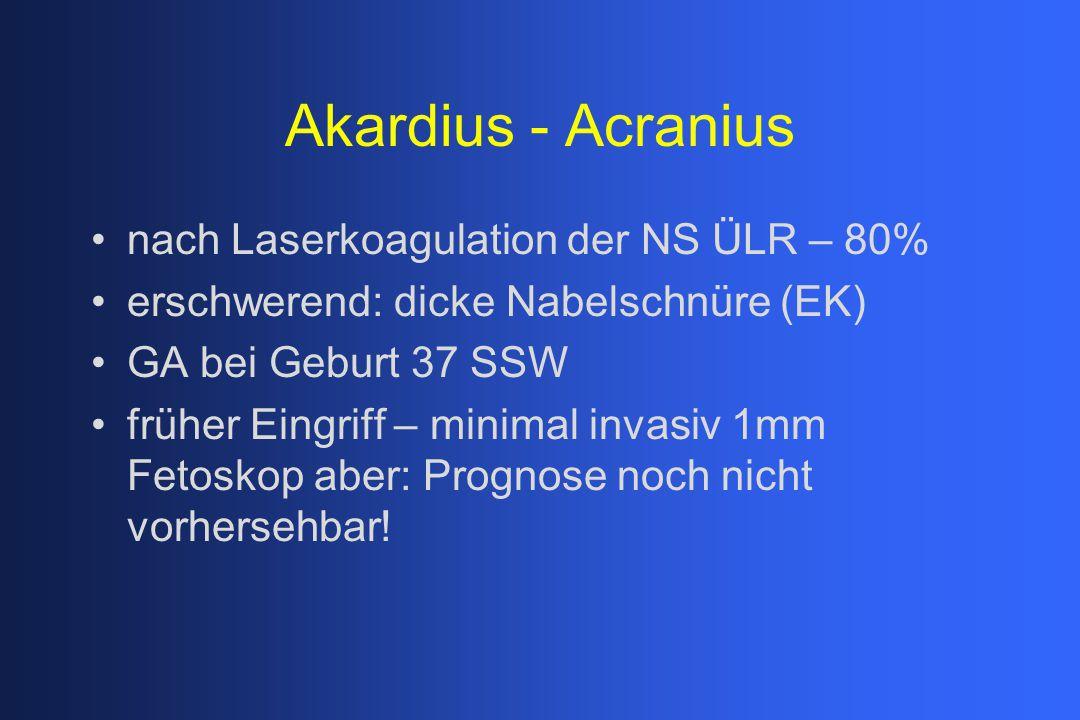 Akardius - Acranius nach Laserkoagulation der NS ÜLR – 80%