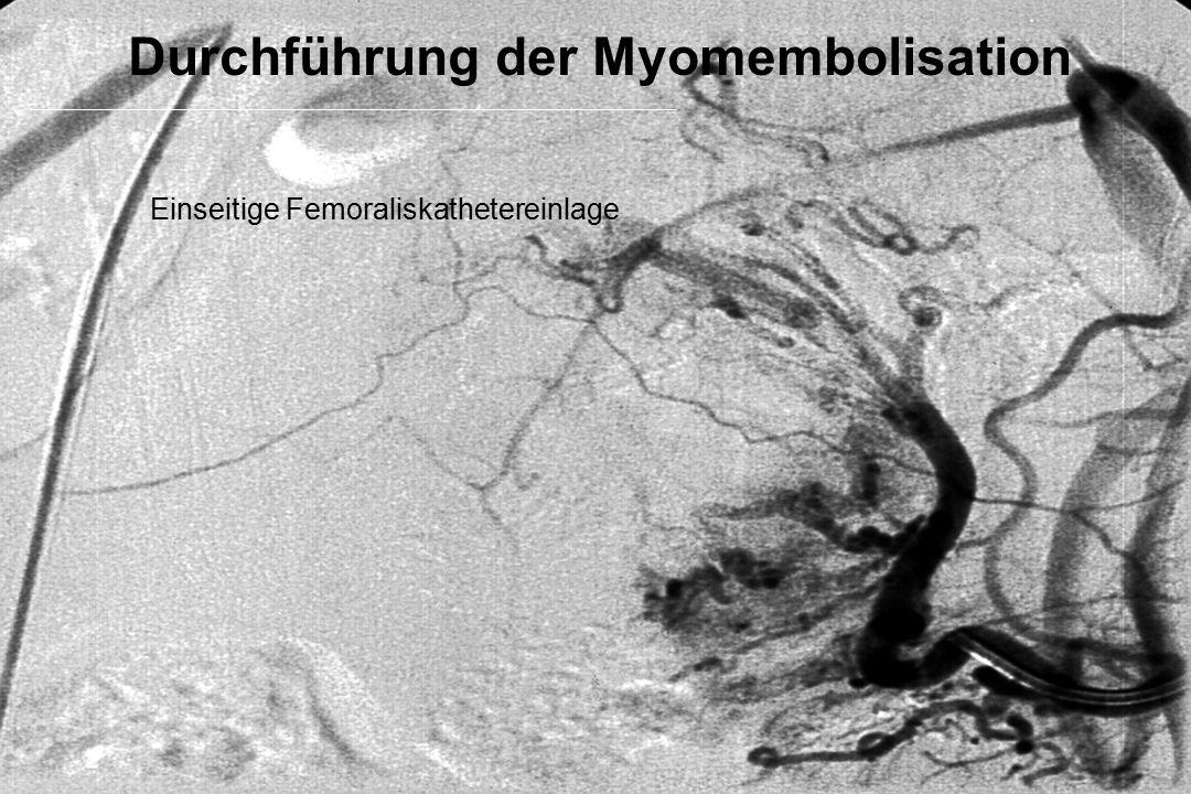 Durchführung der Myomembolisation