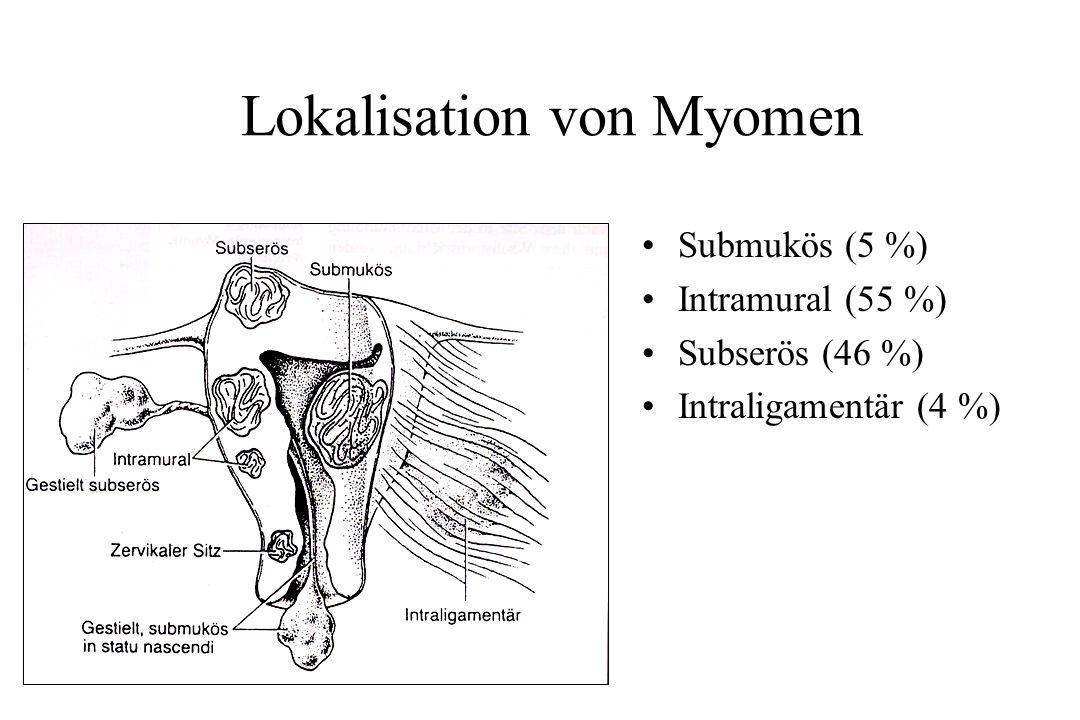 Lokalisation von Myomen