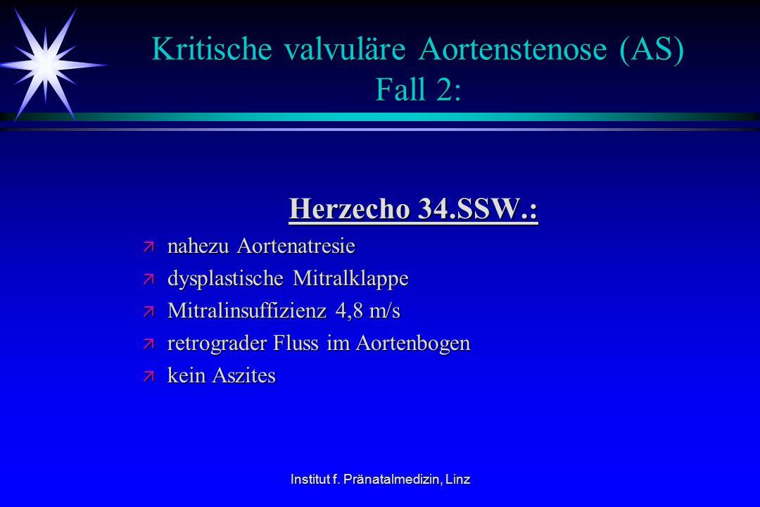 Kritische valvuläre Aortenstenose (AS) Fall 2: