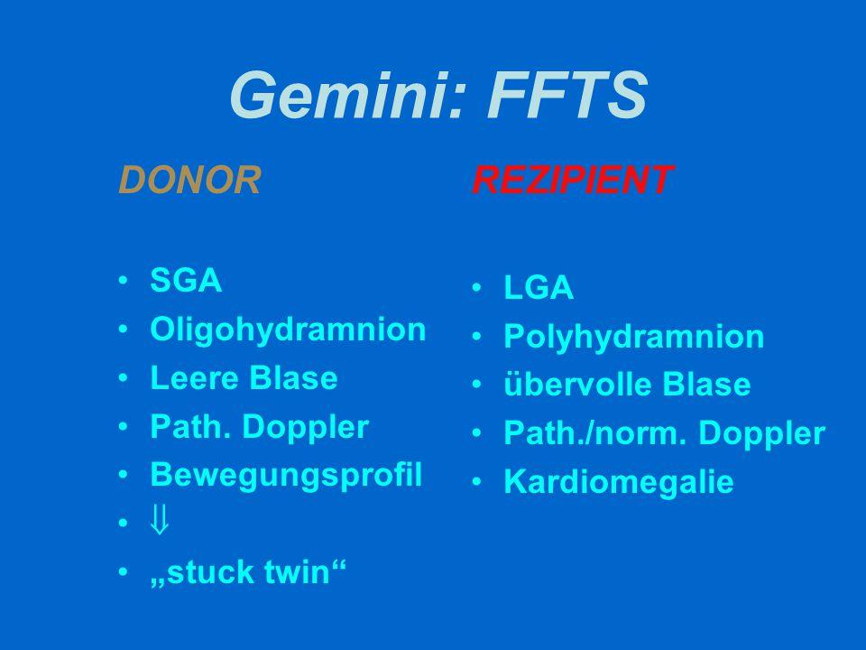 Gemini: FFTS DONOR REZIPIENT SGA LGA Oligohydramnion Polyhydramnion