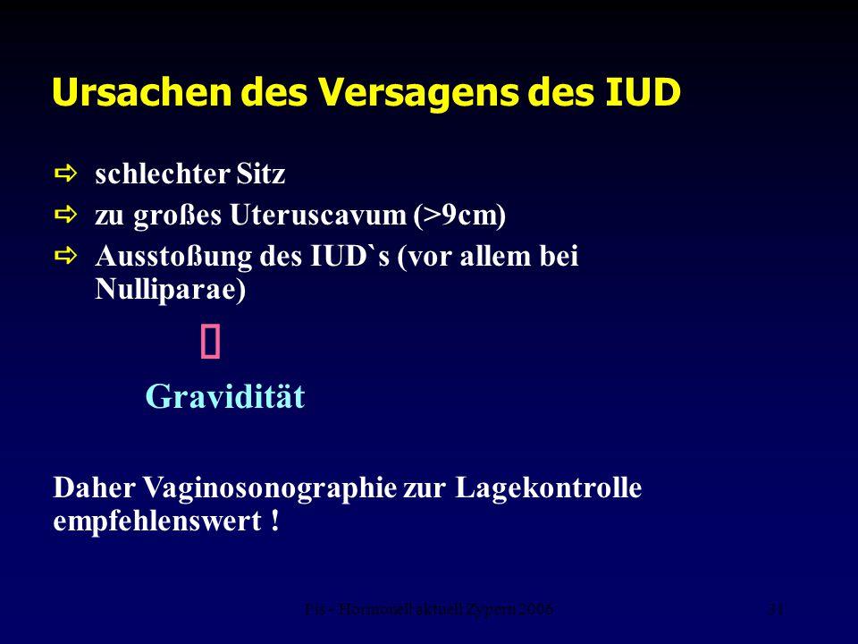 Ursachen des Versagens des IUD