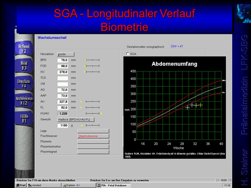 SGA - Longitudinaler Verlauf Biometrie
