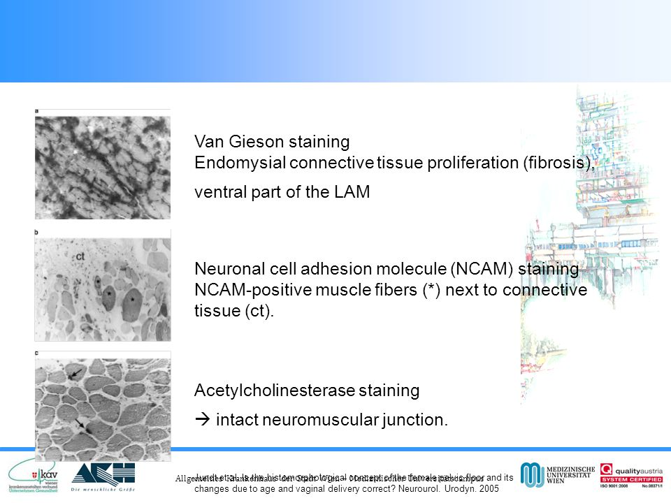 Neuronal cell adhesion molecule (NCAM) staining
