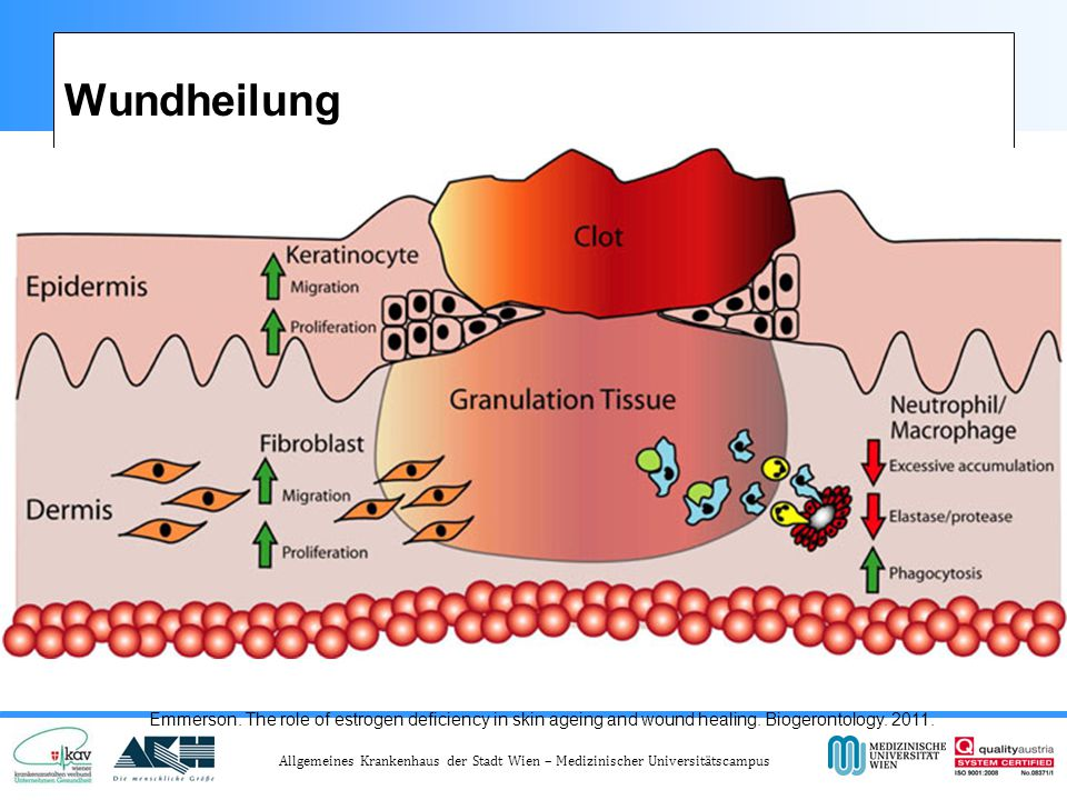 Wundheilung Emmerson. The role of estrogen deficiency in skin ageing and wound healing.