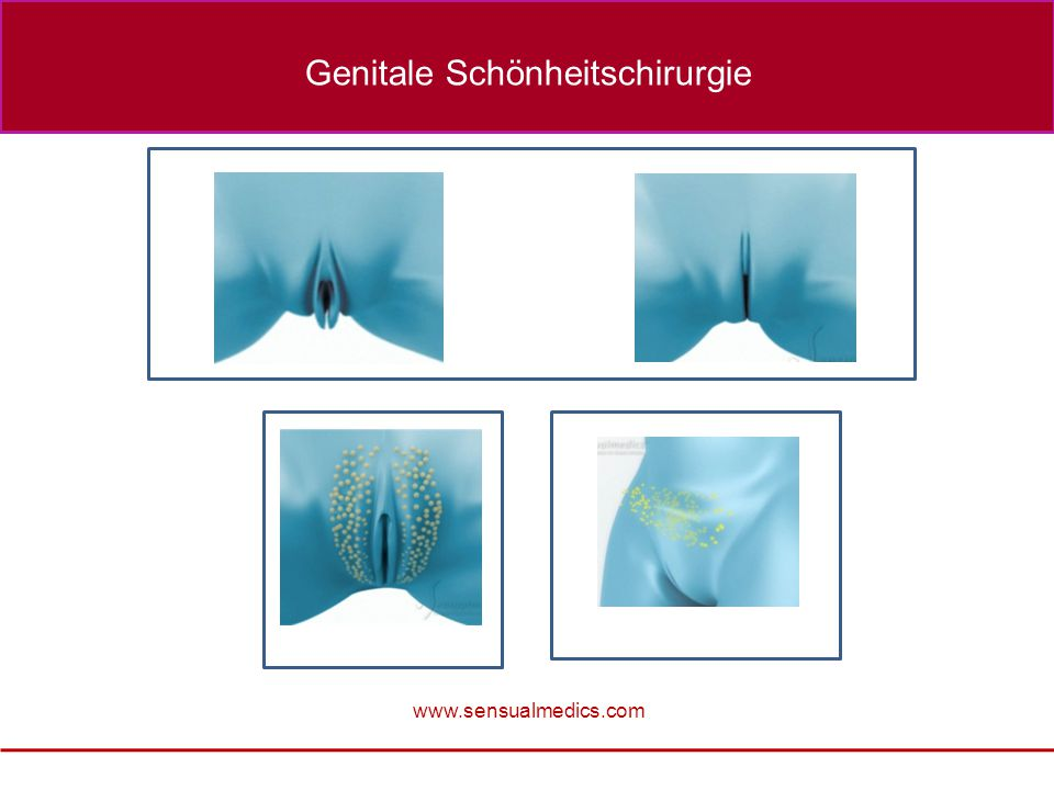Genitale Schönheitschirurgie
