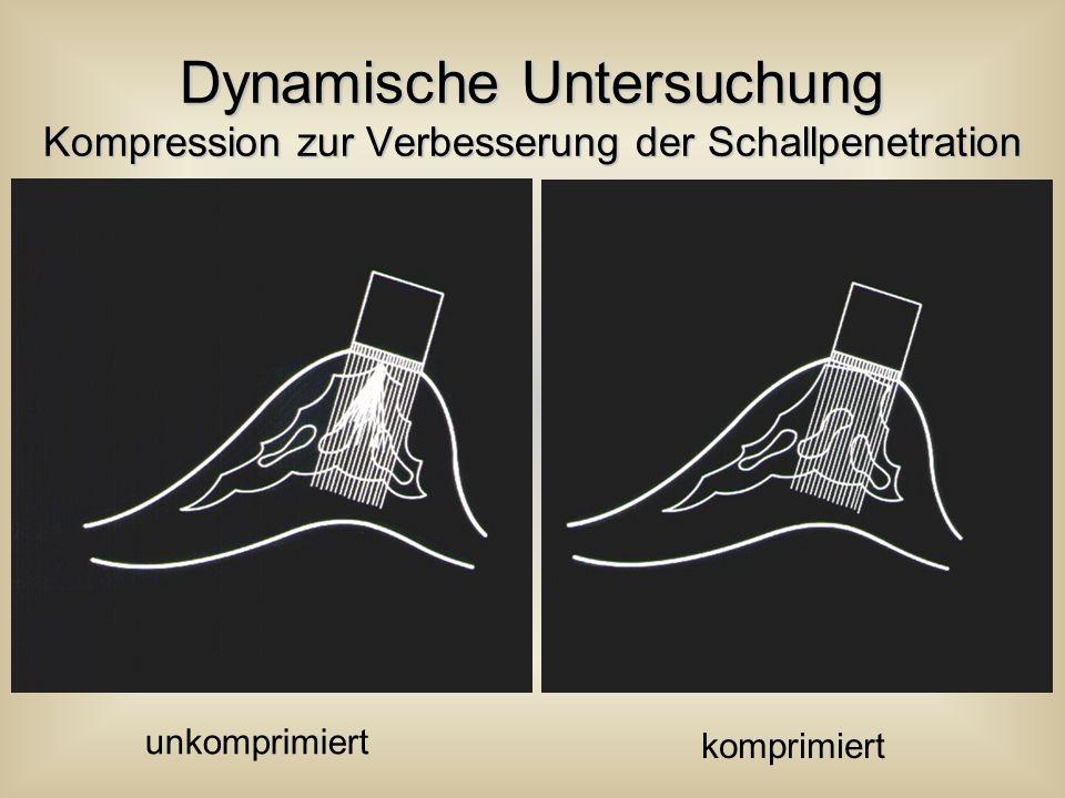 Dynamische Untersuchung Kompression zur Verbesserung der Schallpenetration