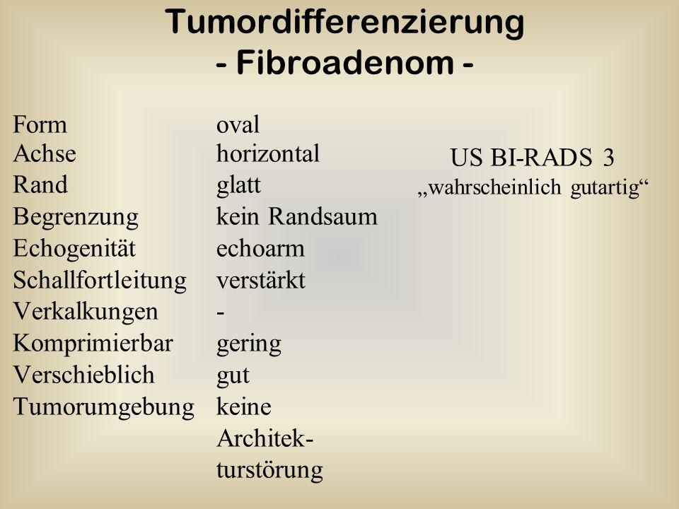 Tumordifferenzierung - Fibroadenom -