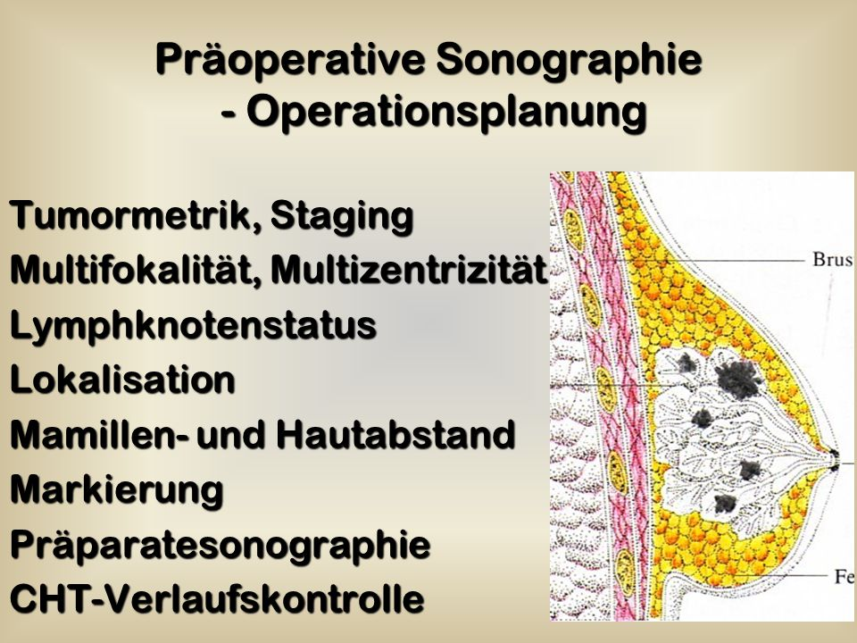 Präoperative Sonographie - Operationsplanung