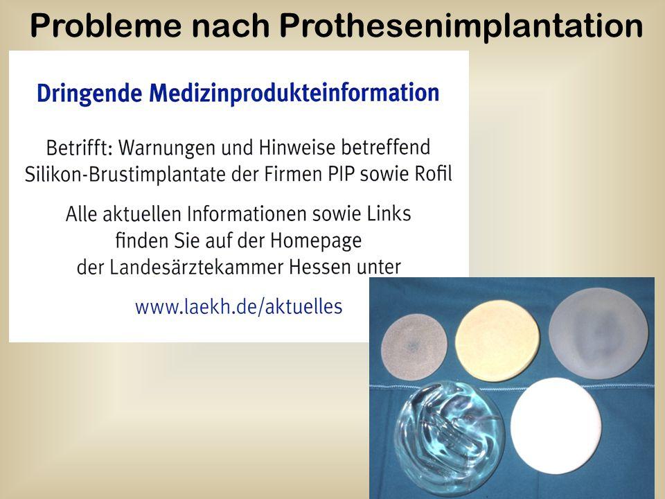 Probleme nach Prothesenimplantation