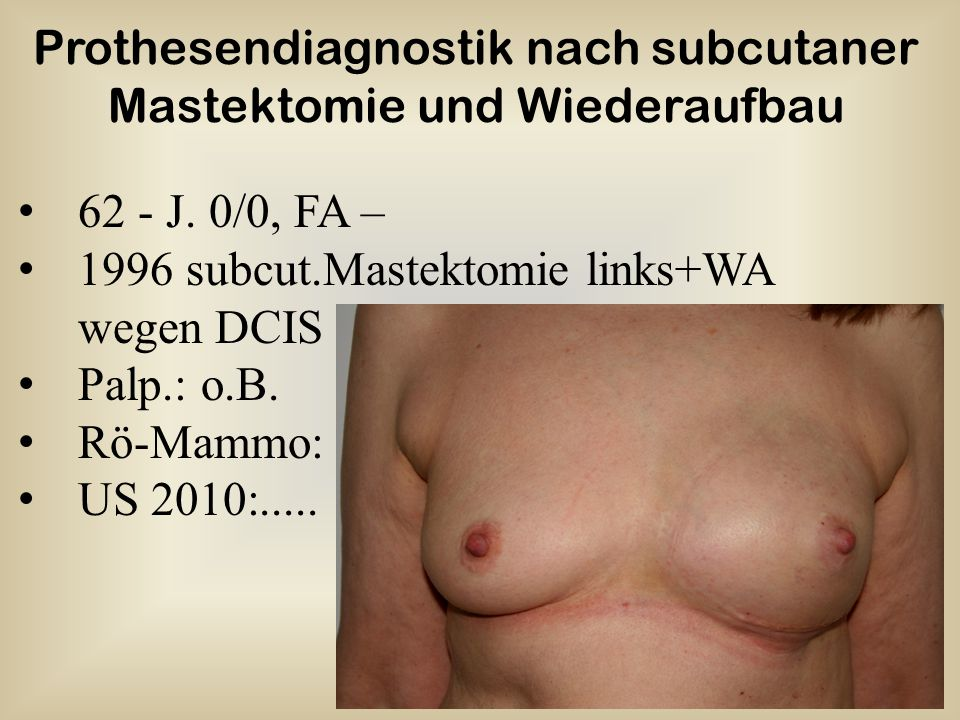 Prothesendiagnostik nach subcutaner Mastektomie und Wiederaufbau