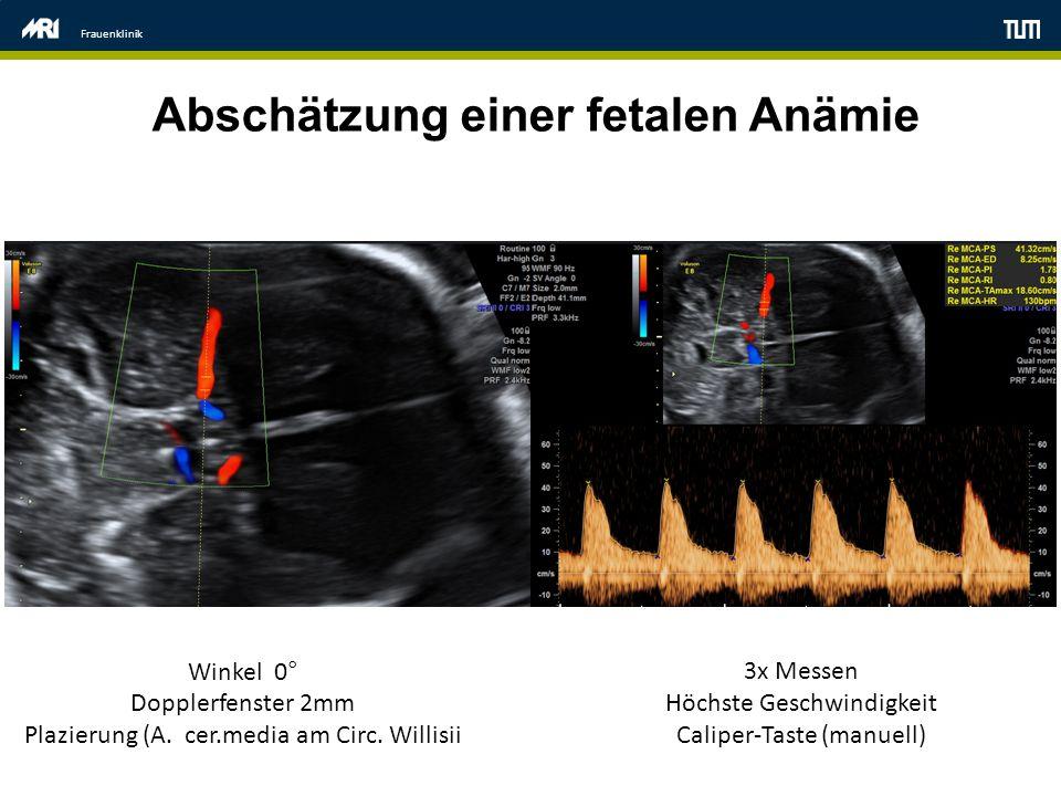 Abschätzung einer fetalen Anämie