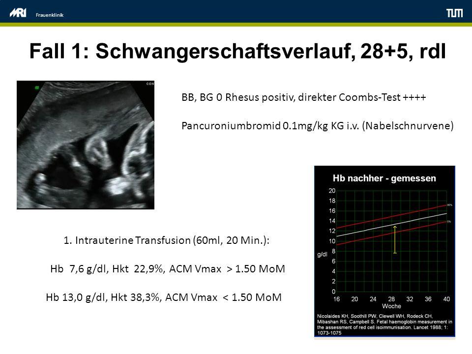 Fall 1: Schwangerschaftsverlauf, 28+5, rdI